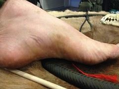 Wolfmaan's bare foot after 3 days of using the bow drill (Wolfmaan) Tags: bare barefootfeettoes