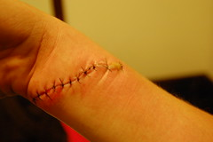 (teapics) Tags: girl arm cut stitches wrist wound healing pus sutures laceration