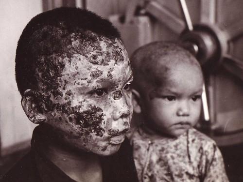 Niños afectados por la tragedia de Vietnam