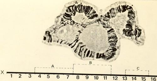 Inversões do cromossomo X de D.nappae