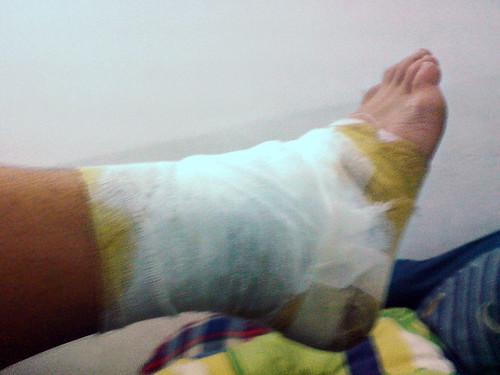 Old my leg