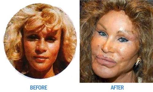 jocelyn Before & After
