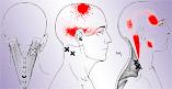 dolor de cabeza (5)