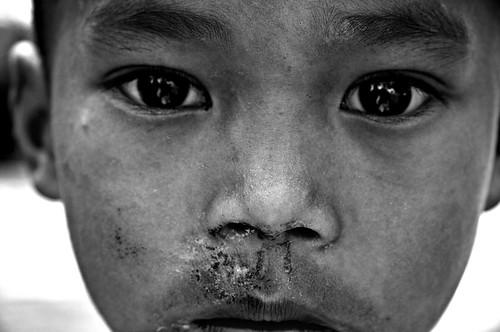 Burmese Eyes