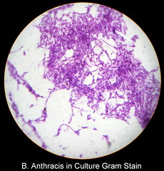 B. Anthracis in Culture Gram stain (Albaraa Mehdar) Tags: b stain canon high student lab media culture slide powershot medical resolution medicine gram hd slides microscopic microscope bacteria microbiology faculty colony practical reaction immunology biochemical g10 serology albaraa anthracis mehdar