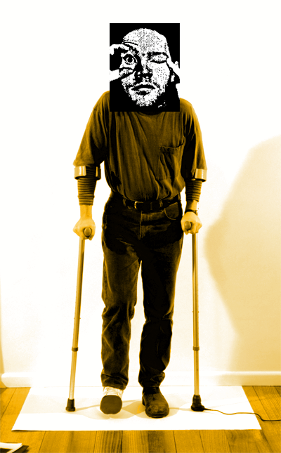 1998_PT on crutches_400