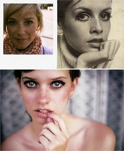 freckle girls