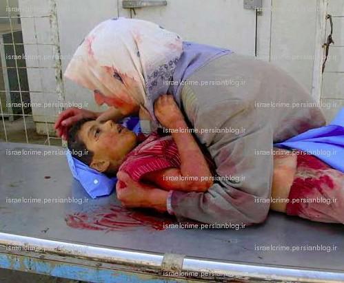 Israeli crimes in Gaza (9) جنایتهای اسرائیل در غزه by iranian2.
