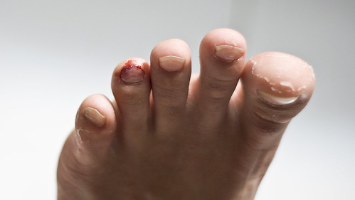 My Feet Hurts