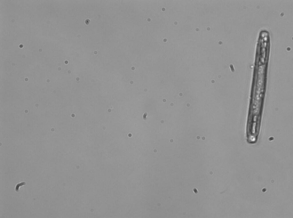 Synedra (diatom)