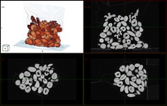 Nuts About CT! (voxel123) Tags: 3d walnut nuts walnuts almond ct scan medical xray almonds nut cashew cashews hazelnut vr radiology rendering rendered catscan volume mpr gantry hazelnuts colorcoded ctscan tomography axial modality magneticresonanceimaging catscanner radiological tomograph medicalimaging volumerendering ctscanner computertomography hounsfield msct carestream mdct transferfunction multislice volr carestreamhealth multidetector volumerendered
