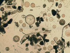Phytoplankton -just a partial drop of seawater