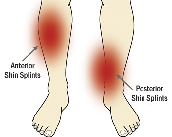 Anterior and Posterior Shin Splints