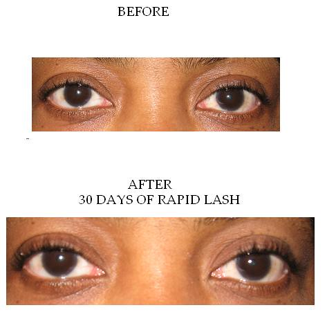 RAPID LASH PICTURES, BEFORE AND AFTER 30 DAYS
