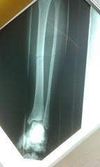 IMAG0048 (phalinn) Tags: foot xray bone limbs hip femur tibia ankle fibula orthopaedics fractures