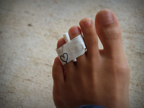 broken toe. roken toe