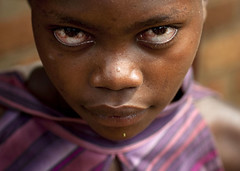 Miss Farida in Kigali, Rwanda (Eric Lafforgue) Tags: poverty africa above street girl look outdoors pain blood eyes war serious market yeux kigali rwanda explore bbc afrika capitale frontpage fille commonwealth marche oneperson regard afrique eastafrica serieux pauvrete lookingatcamera centralafrica 8508 kinyarwanda lafforgue ruanda afriquecentrale   regardcamera   republicofrwanda   ruandesa