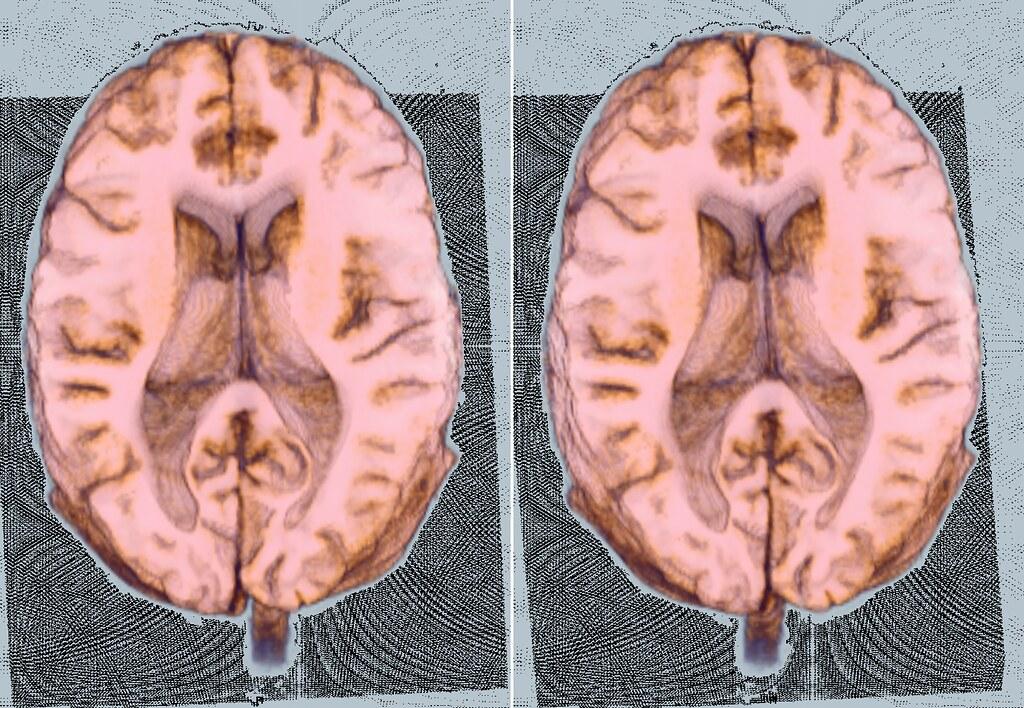 Brain On A Plane