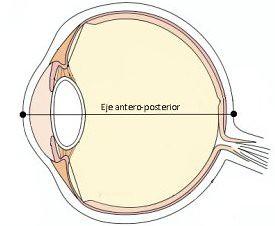Esquema del ojo para mostrar ek eje antero-posterior del ojo y así entender la miopía magna