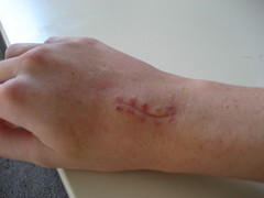 ganglion cyst - stitches removed (antigravityaddiction) Tags: skin cut incision stitches wrist scar ganglioncyst antigravityaddiction katchorman