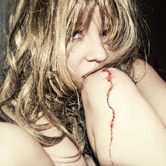 dontdeconstruct (yyellowbird) Tags: selfportrait girl square flash bite bloody cari knee