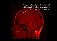 Image by Quinn Norton showing an area of the brain that shuts off when it sees brain images.