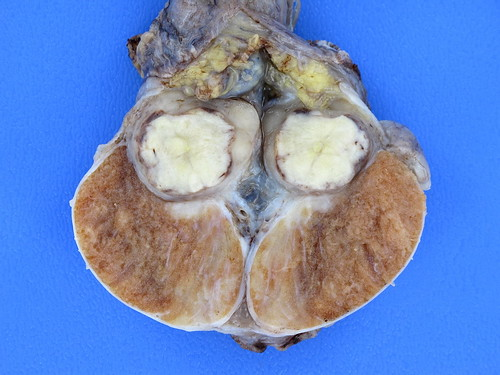 Mixed Germ Cell Tumor
