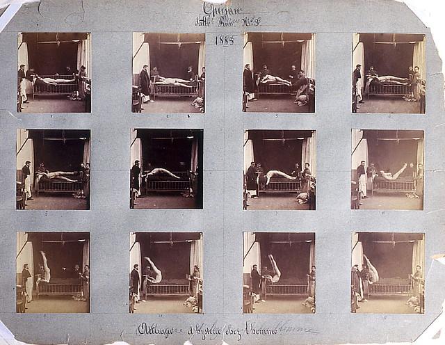 Albert Londe, Attaque dhystérie chez lhomme, planche dinstantanés, 1885.