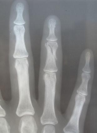 les broken finger