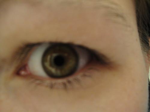 Look Into My Eye - Diabetes 365 - January 5, 2009