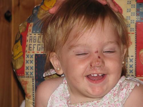 Luli diente roto