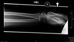 Broken wrist (becksldrt) Tags: hospital hand arm xray bones wrist becks theaccident brokenwrist rightwrist