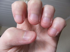 DSCF6988 (ongle86) Tags: ongles nails rongés biting pouce thumb sucé sucking doigts fingers hand mains fetishisme