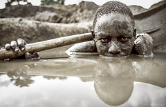 the strength of the weak (Moreno Pregno Photography) Tags: suffering blood diamond child reportage work inspiration cover flickr flickriver uganda moroph89 surgeryforchildren