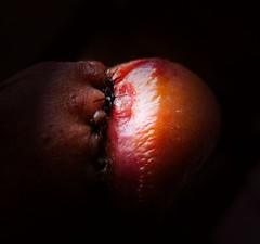 monday (the Balanitis trip) Tags: balanitis glans circumcision stitches balanitisxeroticaobliterans penis foreskin surgicalsutures