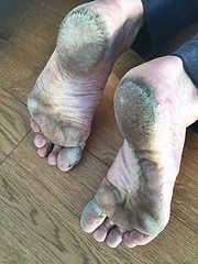 (danragh) Tags: scalzo barefoot soles feet