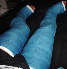 (fcaster8) Tags: fetish leg bondage cast fiberglass llc restriction immobilize immobilization dllc abasiophilia