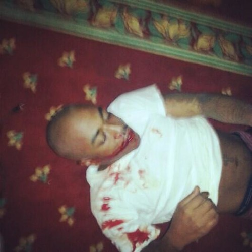 Rapper Messy Marv beat up .. attackers take his phone and tweet pictures of him on twitter
