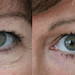 "Subtle early tear trough treatment Juvederm • <a style=""font-size:0.8em;"" href=""http://www.flickr.com/photos/99747515@N07/9494488043/"" target=""_blank"">View on Flickr</a>"