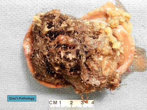 Mature cystic teratoma