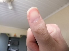 DSCF6986 (ongle86) Tags: ongles nails rongés biting pouce thumb sucé sucking doigts fingers hand mains fetishisme