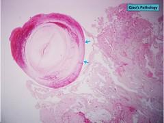 Qiao's Pathology: Venous Hemangioma (Qiao's Pathology (Art and Science in Medicine)) Tags: qiaos pathology venous hemangioma microscopic