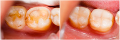 Tooth Colored Fillings (Butterman Dental PC) Tags: aesthetic bacteria bad broken care caries cavity closeup collage collection composite dental dentist dentistry denture destroyed before after beforeafter destructed filling fracture fractured gingiva gum gums health healthcare material medical medicine mouth resin teeth tooth treating treatment unwell work