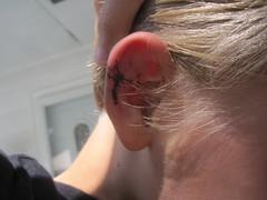 Torn Ear