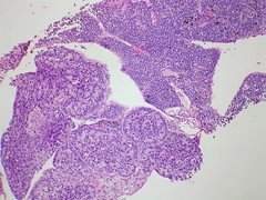 Adenocarcinoma and small cell, B-cell lymphoma - Case 276 (Pulmonary Pathology) Tags: microscopic specimen pathology photomicrograph lymphoma lung smallcell adenocarcinoma bcell