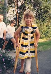 broken leg and family 1992 (deadbudgie) Tags: plaster cast broken leg girl glenbrook nsw australia 1992 vintage 60s dress
