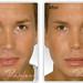 "Botox and Restylane Dermal Filler • <a style=""font-size:0.8em;"" href=""http://www.flickr.com/photos/99747515@N07/9448906072/"" target=""_blank"">View on Flickr</a>"