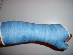 SATS (fcaster8) Tags: fetish arm bondage cast thumb fiberglass spica restriction sats immobilize immobilization abasiophilia