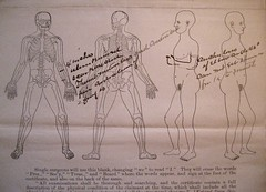 Ranselus G. Burlingame Medical Chart (Piedmont Fossil) Tags: civilwar pension medical chart diagram wound injury