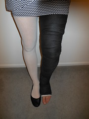 One straight one bent (julesbirdie55) Tags: legcast llc pantyhose cast